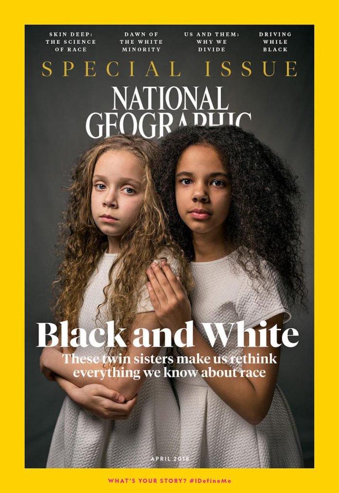 Jumelles, ces deux sœurs n'ayant pas la même couleur de peau brisent les préjugés en couverture de National Geographic National-geographic-soeurs-jumelles-racisme-1-696x1012