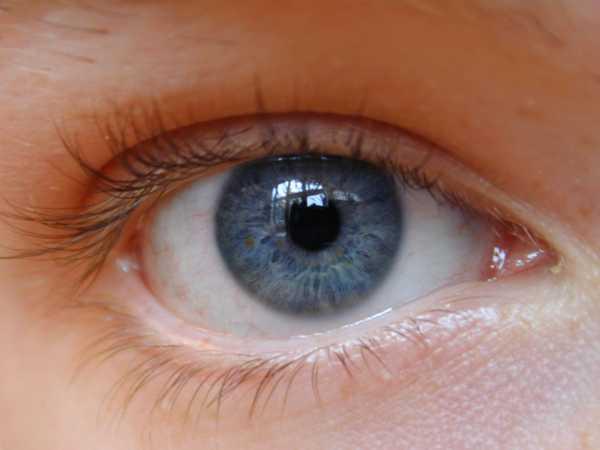[Jeu] Association d'images - Page 3 Dry-Eye-disease12