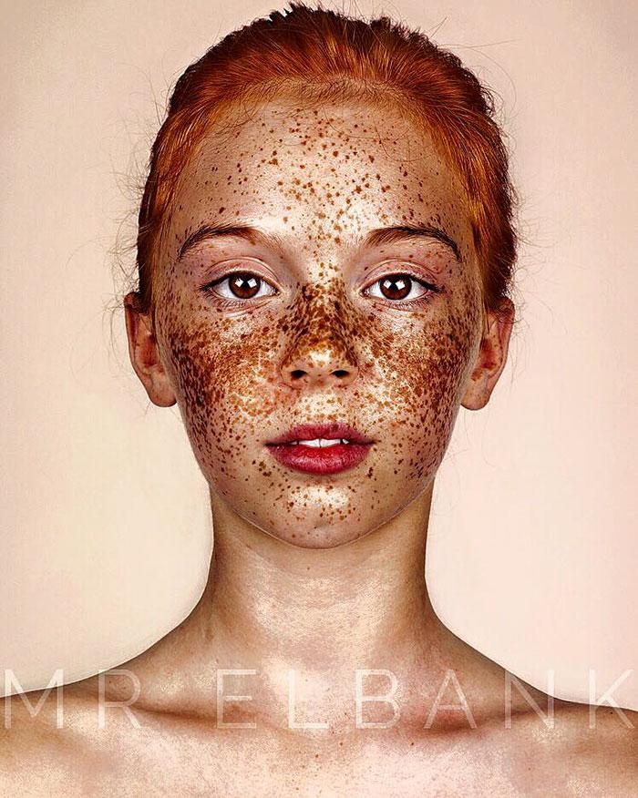 Le masque blanchissant pour la tache rouge sur la personne