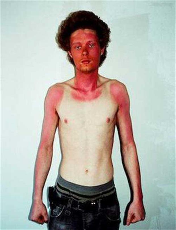 bronzage coup de soleil