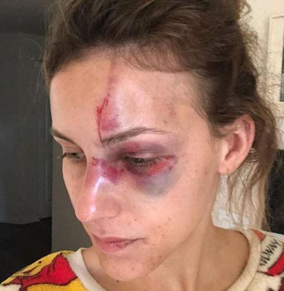 une jeune femme battue par son compagnon poste des photos d 39 elle pour alerter sur ces violences. Black Bedroom Furniture Sets. Home Design Ideas