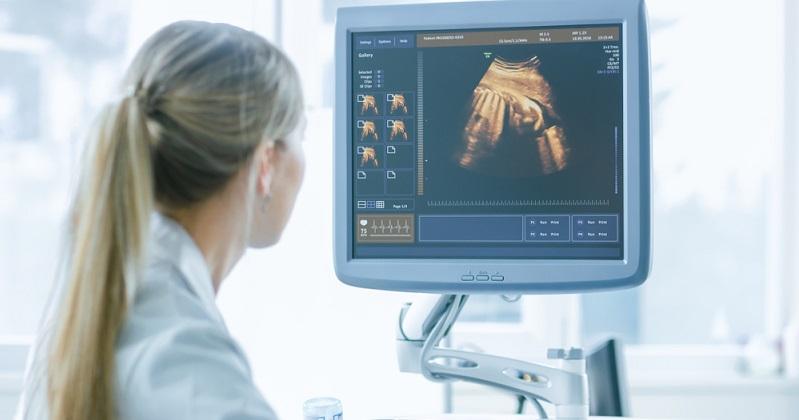Le syndicat des gynécologues de France