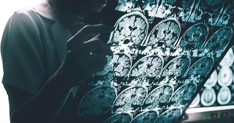 Un médicament révolutionnaire contre la maladie d'Alzheimer commercialisé dès 2020 ?