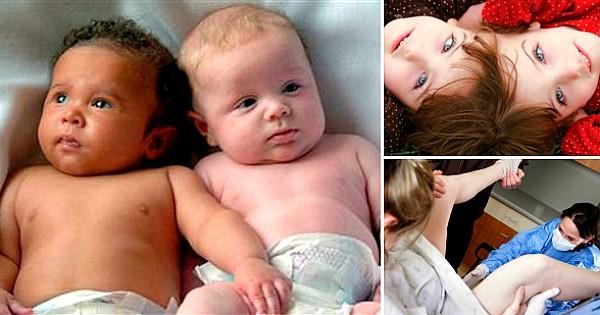 15 choses étonnantes que tout le monde ignore sur les jumeaux ! Et pourtant, c'est fascinant...