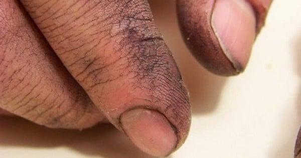 Un recruteur lui demande de laver les mains de son père lors d'un entretien d'embauche... Ce qu'il a dit ensuite m'a mis les larmes aux yeux !