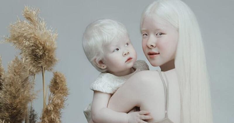 Nées albinos, ces deux soeurs kazakhes surprennent de par leur beauté à travers des clichés sublimes