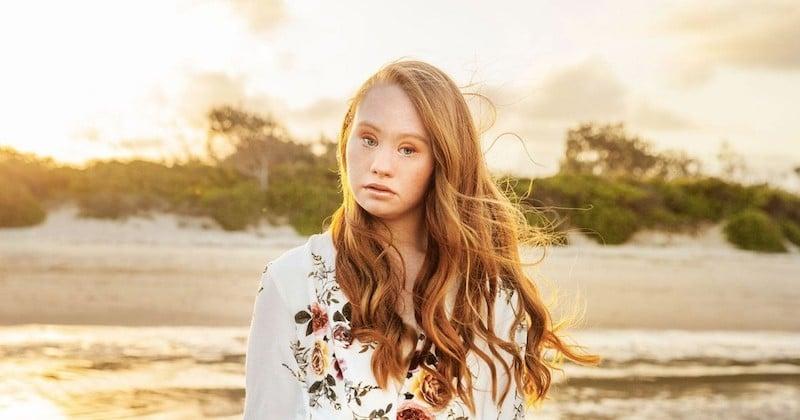 Madeline Stuart, la première mannequin atteinte de trisomie 21