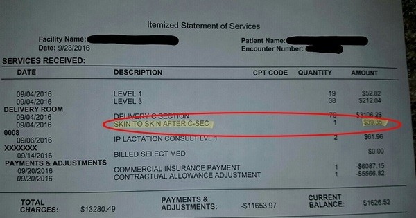 Ce papa a reçu la facture détaillée de l'accouchement de sa femme et s'est vu facturer... le « contact peau à peau » avec bébé ! Incroyable