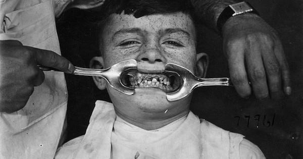8 instruments de médecine du passé qui nous rappellent pourquoi on a tous peur d'aller chez le dentiste