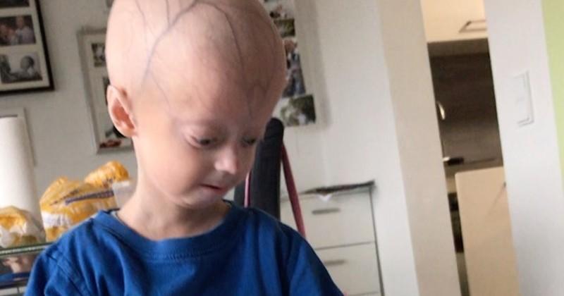 Luke, atteint de progéria, est un enfant qui vieillit plus vite que les autres