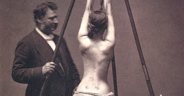 24 photos flippantes de la médecine du passé qui vont vous donner des cauchemars
