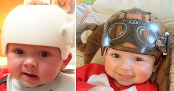 La belle histoire du jour : une artiste décore les casques des enfants victimes du « syndrome de la tête plate » pour en faire une force
