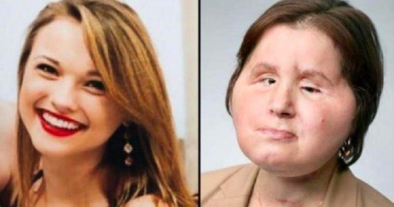 Défigurée à 18 ans après s'être tiré une balle dans la tête, elle retrouve un visage grâce à une greffe