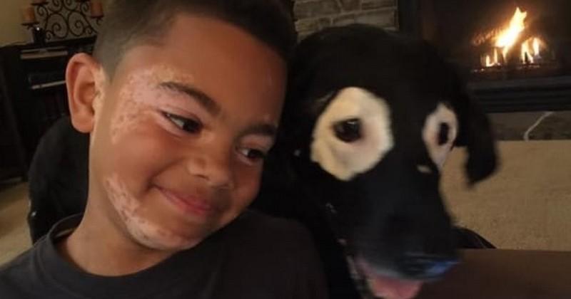 Grâce à ce chien, ce petit garçon, lui aussi atteint de leucodermie (vitiligo), a pu s'accepter avec ses taches et gagner en confiance en soi !