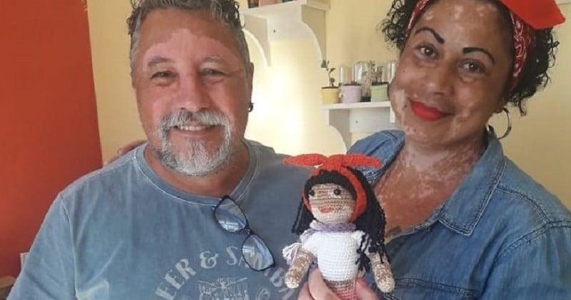 Cet homme crée de jolies poupées vitiligo pour décomplexer les enfants atteints par cette maladie