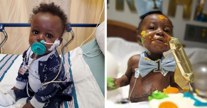 Ce bébé vient de célébrer son premier anniversaire après avoir survécu au Covid-19 et à une greffe de foie