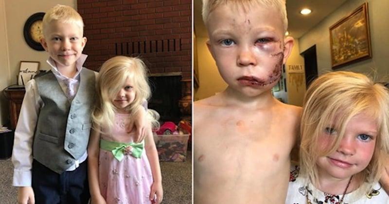 À 6 ans, il sauve la vie de sa petite soeur d'une attaque de chien
