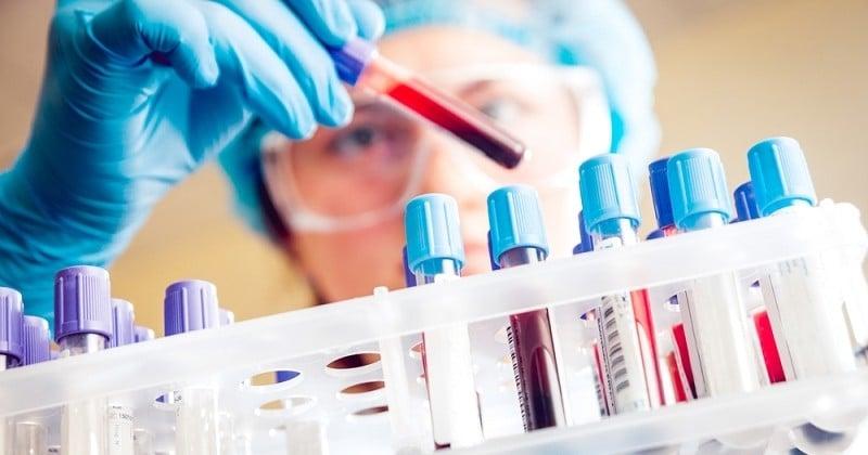 Alzheimer : un nouveau test sanguin créé pour détecter la maladie 20 ans avant qu'elle ne se déclare !