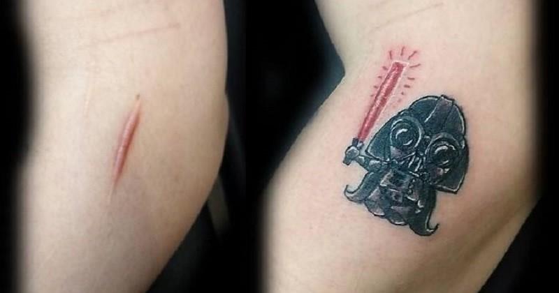 Des tatoueurs transforment les cicatrices et les taches de naissance afin de les rendre plus jolies